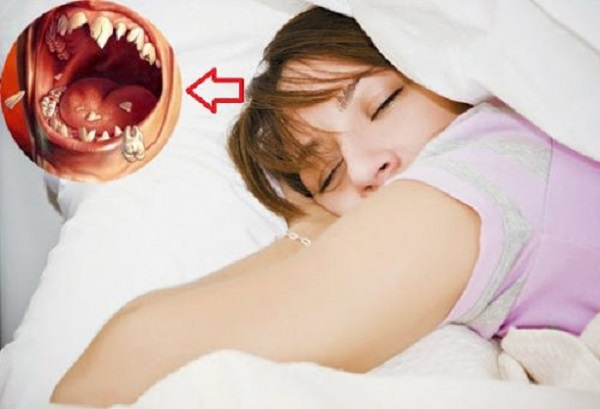 Ngủ mơ thấy rụng răng